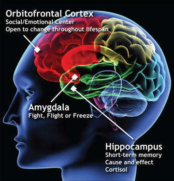 cfL-brain-diagram-cropped 1